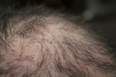 Could Air Pollution Make You Bald?